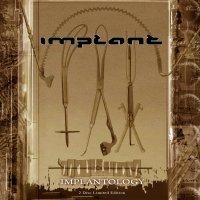31/03/2011 : IMPLANT - A Kind of 'Nu Retro'