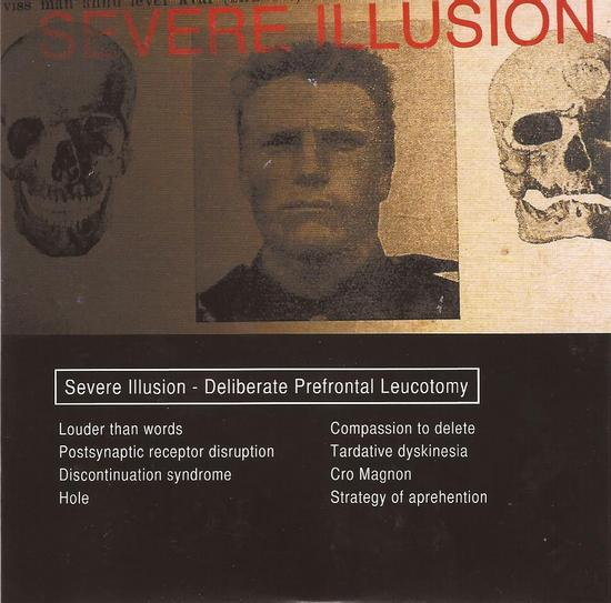 11/12/2013 : SEVERE ILLUSION - Deliberate Prefontal Leucotomy