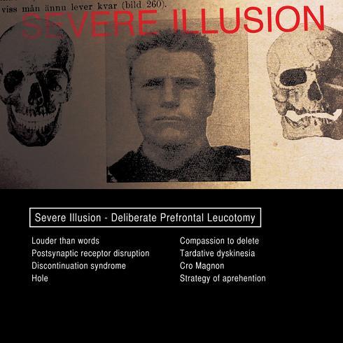 19/03/2014 : SEVERE ILLUSION - Deliberate Prefrontal Leucotomy